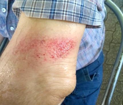 anziano ferito1 frascati ilmamilio